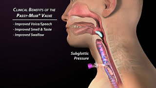Clinical Benefits of the Passy Muir Valve